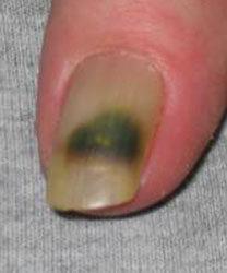 Prevenção de um fungo de tratamento de pés